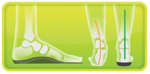 Schuheinlage Footlogics Sport Unterstützung