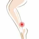 Achillessehnenschmerzen-Footlogics-Einlegesohlen