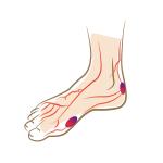 Diabetischer-Fuß-Footlogics-Einlegesohlen