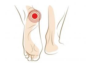 Symptome eines Fersensporns